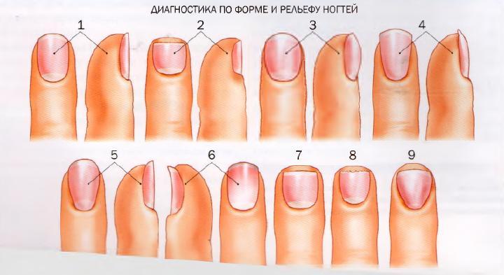 Патология ногтей на руках